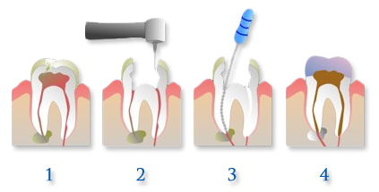 Root Canal Treatment Steps Root Canal Treatment May